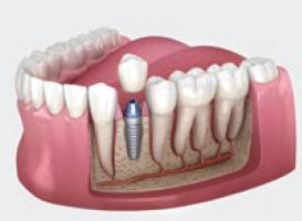 implants ar vienu kroni