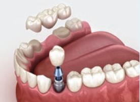 Tiltveida protēze pret Implantu