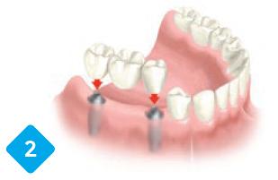 zoba implants